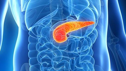 bệnh ung thư tuyến tụy