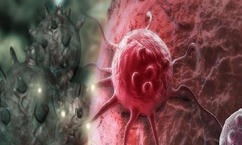 Bệnh ung thư