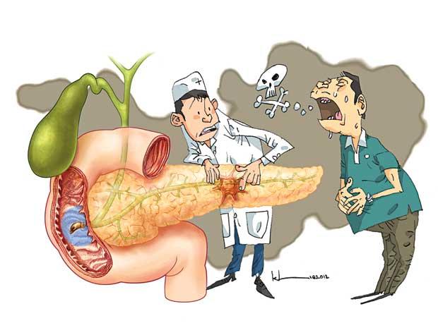 nguy cơ ung thư tụy
