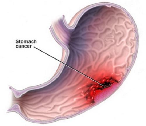tế bào ung thư dạ dày