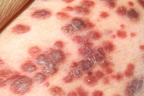 Ung thư biểu mô tế bào da