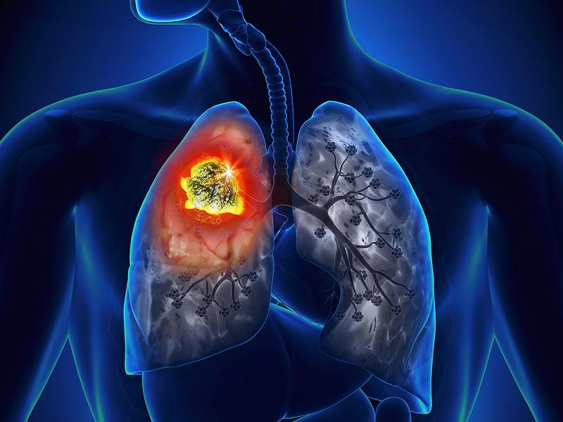 Nhanh chóng phát hiện ung thư phổi qua 8 dấu hiệu cơ bản