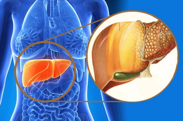 Ung thư gan nguyên phát – chẩn đoán và cách chữa trị