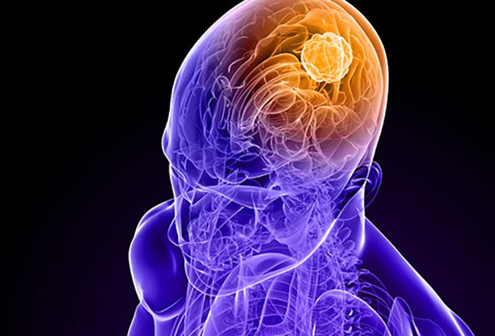 bệnh ung thư não