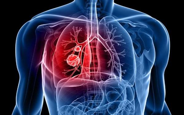 Căn bệnh ung thư phổi tàn phá cơ thể đến giây phút cuối cùng