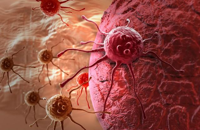 Điều trị ung thư phổi hiệu quả với liệu pháp miễn dịch