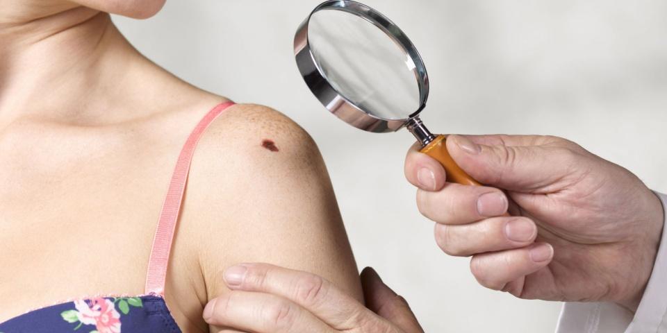 Những dấu hiệu bất thường cảnh báo bệnh ung thư da