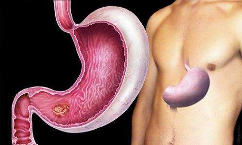 phát hiện sớm ung thư dạ dày