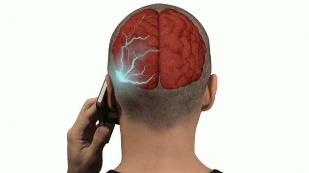 Sử dụng điện thoại di động, mắc u não lúc nào không hay
