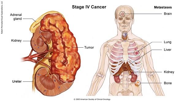 ung thư di căn