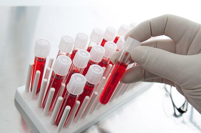 Kết quả hình ảnh cho xét nghiệm máu