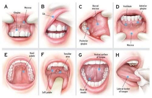 Dấu hiệu ung thư lưỡi dễ nhầm lẫn với nhiệt miệng