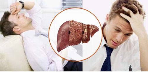 Bệnh gan là căn bệnh thường gặp ở nam giới