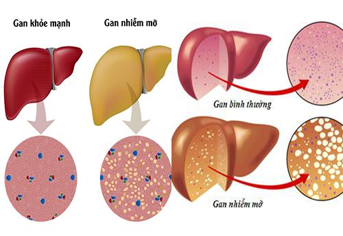 Dấu hiệu cho thấy gan nhiễm mỡ