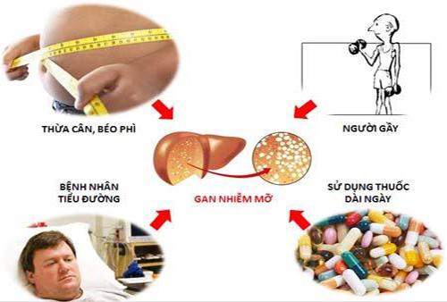 Một số nguyên nhân gây bệnh gan nhiễm mỡ