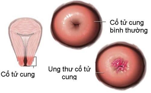 Ung thư cổ tử cung chủ yếu do nhiễm HPV thông qua đường tình dục