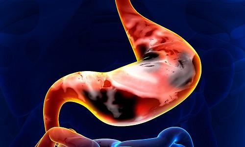 Ung thư dạ dày phát hiện sớm tỷ lệ điều trị thành công khá cao
