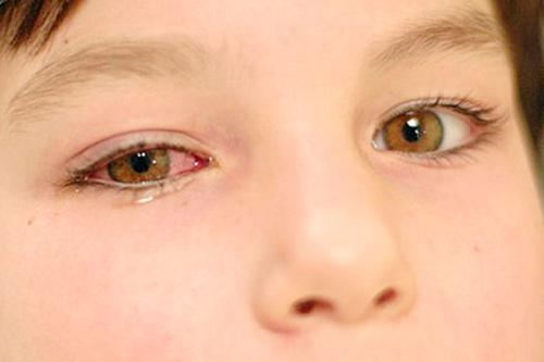 Cần cảnh giác với các triệu chứng ung thư mắt