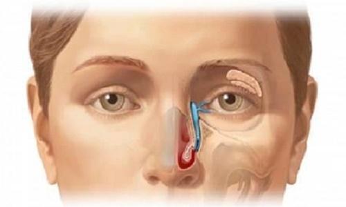 Ung thư mũi xoang - hiểu rõ về bệnh để phòng tránh hiệu quả