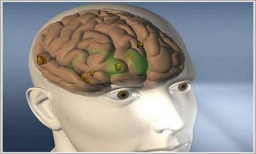 Bệnh ung thư não giai đoạn đầu không có biểu hiện rõ ràng