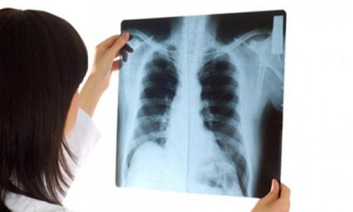 Chụp X-quang hỗ trợ chẩn đoán bệnh