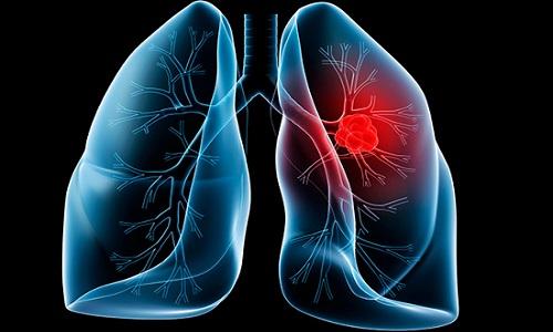 Ung thư phổi là nguyên nhân chủ yếu gây tử vong trong các ca ung thư