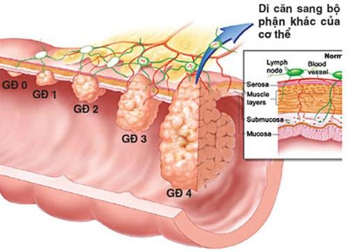 Các giai đoạn phát triển của bệnh ung thư trực tràng
