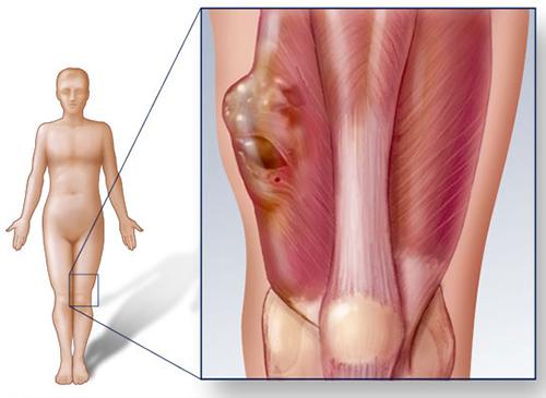 Cần phát hiện ung thư xương từ giai đoạn sớm