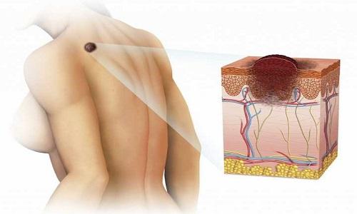 Dấu hiệu ung thư da tế bào đáy