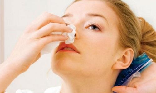 Chảy máu cam có thể là triệu chứng ung thư vòm họng