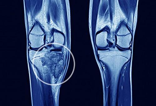Xương bị sưng hoặc nổi u cục có thể là triệu chứng ung thư xương
