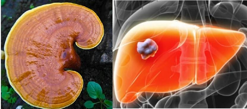 Nấm lim xanh chữa ung thư gan được đánh giá mang lại hiệu quả tích cực