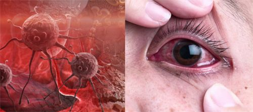 Các giai đoạn của ung thư mắt
