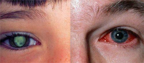 Cách chẩn đoán bệnh ung thư mắt