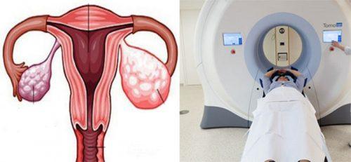 Cách điều trị ung thư buồng trứng