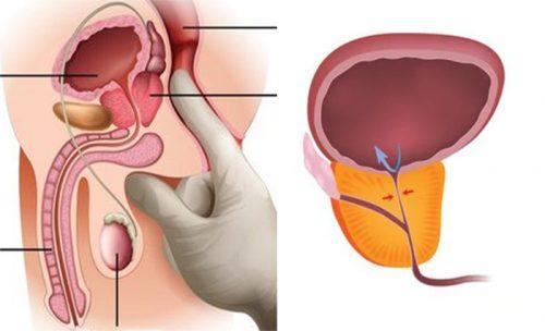 Cách điều trị ung thư tuyến tiền liệt bằng Đông y