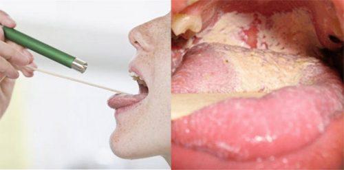 Chăm sóc bệnh nhân ung thư lưỡi