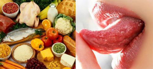 Chế độ dinh dưỡng cho người ung thư lưỡi