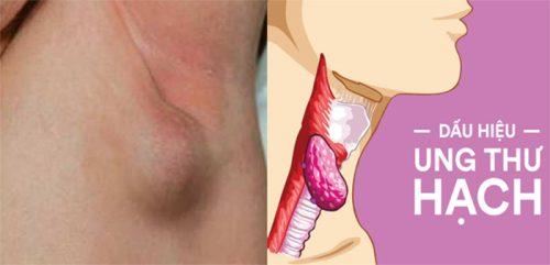 Dấu hiệu ung thư hạch