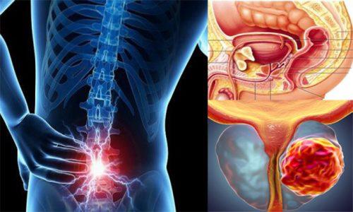 Dấu hiệu ung thư tuyến tiền liệt giai đoạn cuối