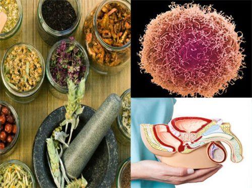 Điều trị ung thư dương vật bằng Đông y