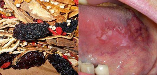 Điều trị ung thư lưỡi bằng Đông y