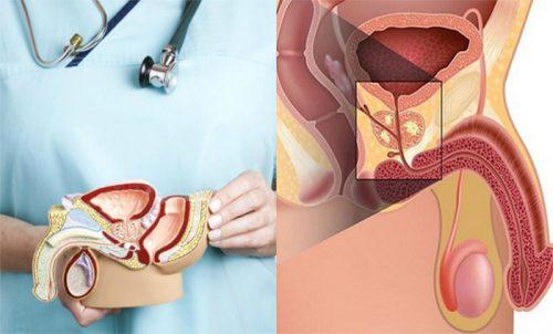 Đối tượng dễ mắc bệnh ung thư tuyến tiền liệt