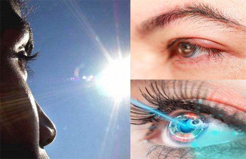 Nguyên nhân hình thành bệnh ung thư mắt