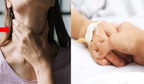 Những lưu ý khi chăm sóc bệnh nhân ung thư thanh quản