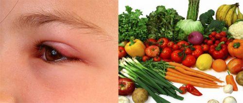 Những lưu ý về thực đơn cho người ung thư mắt