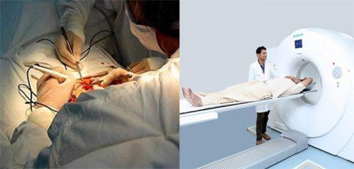 Phương pháp chẩn đoán ung thư dương vật