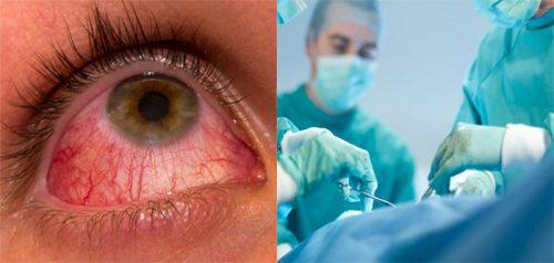 Phương pháp điều trị bệnh ung thư mắt