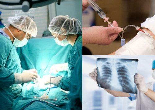 Phương pháp điều trị ung thư hạch