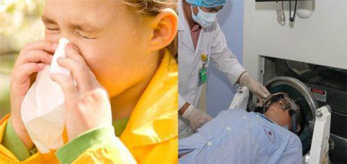 Phương pháp điều trị ung thư mũi
